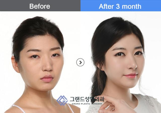 박유진-광대회전술.jpg